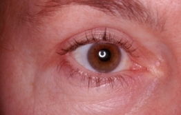 Upper Blepharoplasty After Operation