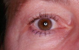 Upper Blepharoplasty Before Operation